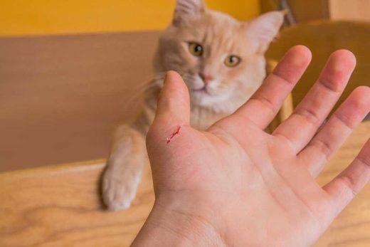 Teen's bizarre sudden-onset schizophrenia & hallucinations caused by cat scratch disease