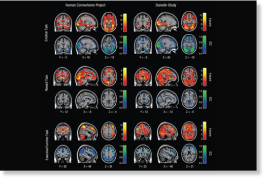 Turns out brain scans aren't as useful as scientists thought